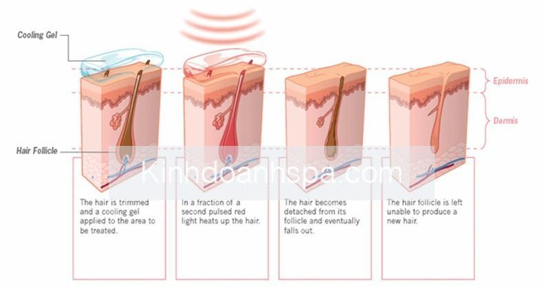 Nguyên Lý Triệt Lông Của Diode Laser