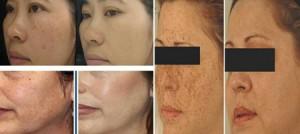 Hiệu quả trước và sau khi điều trị nám da.