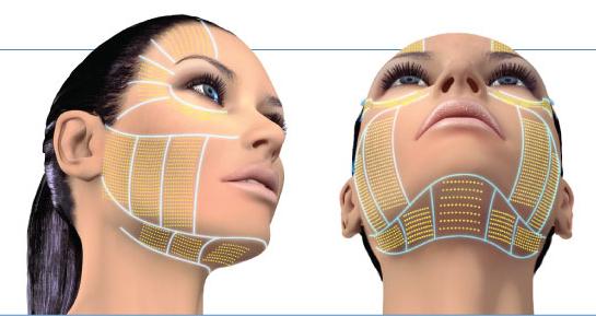 HIFU tác dụng lên nhiều vùng trên mặt giúp nâng đỡ các cơ, căng da và trẻ hóa.