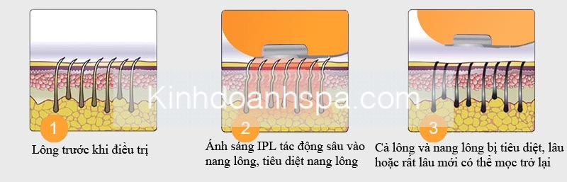 nguyen ly triet long IPL
